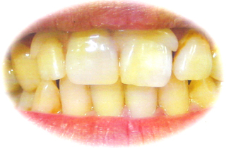 入れ歯 審美 白いツメ アセタル