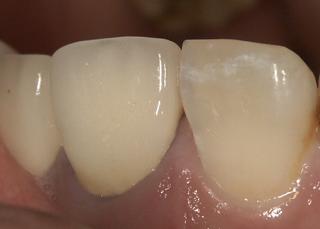 審美的に良くないメタルボンドのブラックマージン 歯石ではない