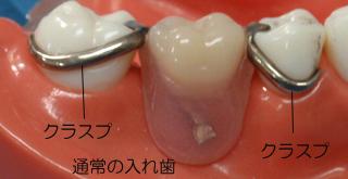 審美的でない通常の入れ歯 金属クラスプ