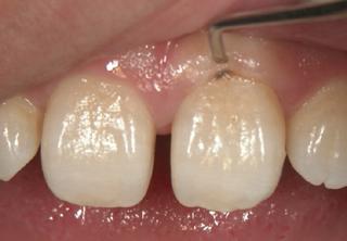 審美的に良くない 歯周病 歯肉の下の歯石 歯石取りの必要あり