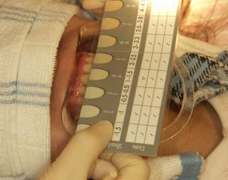 審美歯科・ホワイトニングの手順 シェード確認