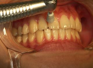 審美歯科・ホワイトニングの手順 清掃