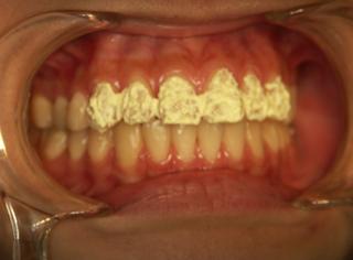 審美歯科・ホワイトニングの手順 薬剤塗布