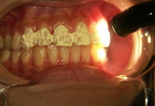 審美歯科・ホワイトニングの手順 ホワイトニング用ライト照射
